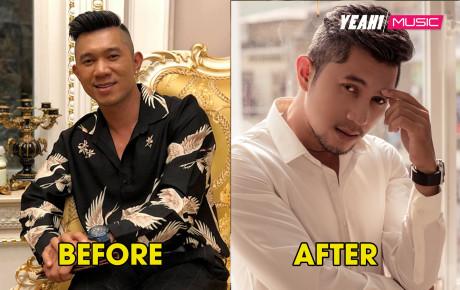 CDM thảng thốt trước vẻ đẹp lai Tây quá đẹp trai của Lương Bằng Quang sau phẫu thuật thẩm mỹ